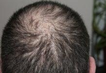 tratament pentru alopecie