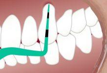 endodontie in sector 6